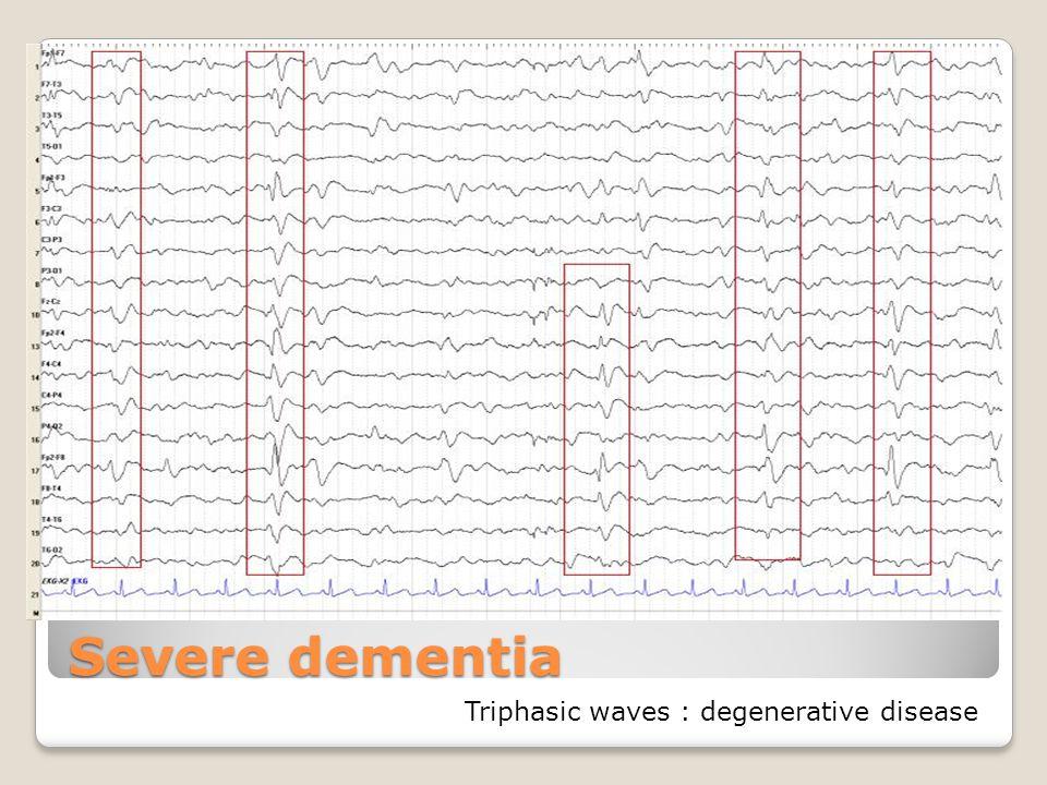 Severe dementia Triphasic waves : degenerative disease