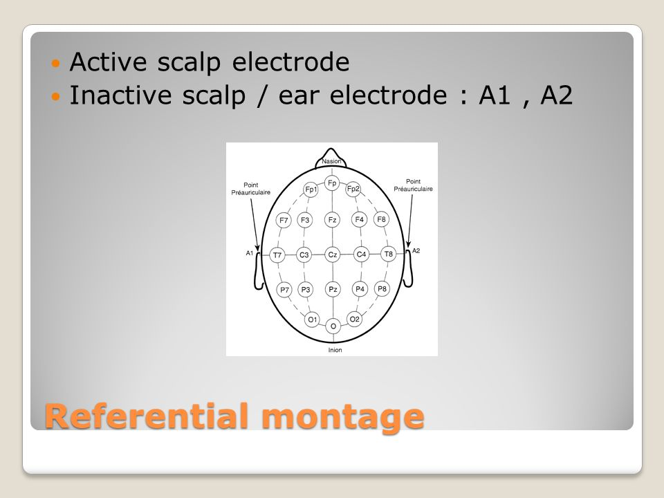 Referential montage Active scalp electrode Inactive scalp / ear electrode : A1, A2