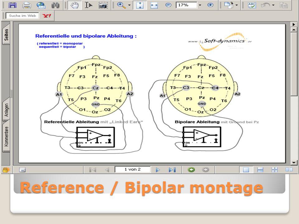 Reference / Bipolar montage