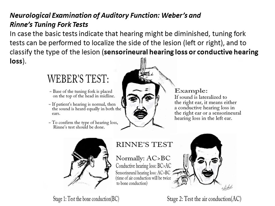 Neurological Examination of Auditory Function: Weber's and Rinne's Tuning Fork Tests In case the basic tests indicate that hearing might be diminished