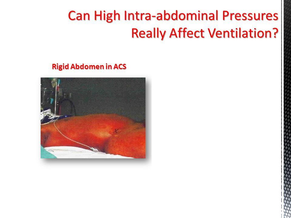 Can High Intra-abdominal Pressures Really Affect Ventilation? Rigid Abdomen in ACS S/P Decompressive Laparotomy