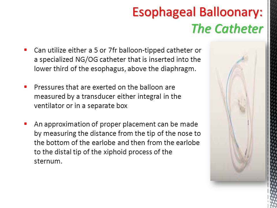  Can utilize either a 5 or 7fr balloon-tipped catheter or a specialized NG/OG catheter that is inserted into the lower third of the esophagus, above