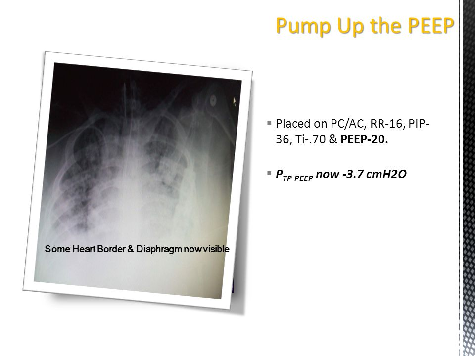  Placed on PC/AC, RR-16, PIP- 36, Ti-.70 & PEEP-20.  P TP PEEP now -3.7 cmH2O Some Heart Border & Diaphragm now visible Pump Up the PEEP