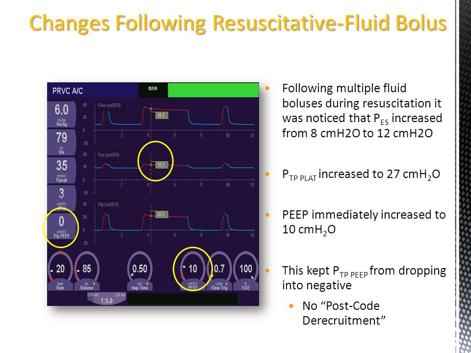 Changes Following Resuscitative-Fluid Bolus Following multiple fluid boluses during resuscitation it was noticed that P ES increased from 8 cmH2O to 1