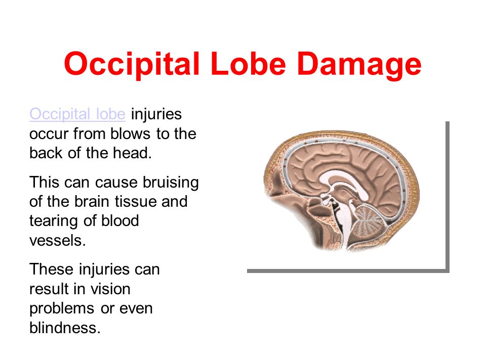 Occipital Lobe The occipital lobe is at the rear of the brain and controls vision and recognition. vision