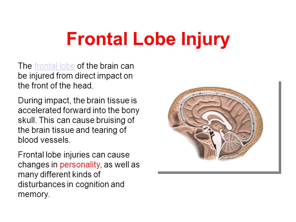 Frontal Lobe Injury The frontal lobe of the brain can be injured from direct impact on the front of the head.frontal lobe During impact, the brain tissue is accelerated forward into the bony skull.