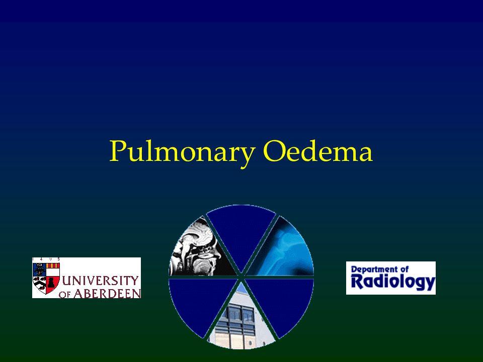 What is Pulmonary Oedema.