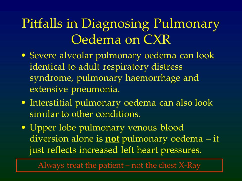 Pitfalls in Diagnosing Pulmonary Oedema on CXR Severe alveolar pulmonary oedema can look identical to adult respiratory distress syndrome, pulmonary h