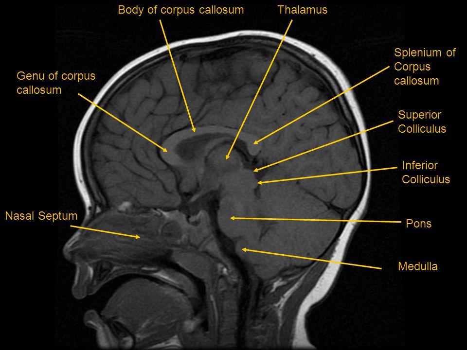 Body of corpus callosum Thalamus Splenium of Corpus callosum Genu of corpus callosum Pons Superior Colliculus Inferior Colliculus NasalNasal Septuml M