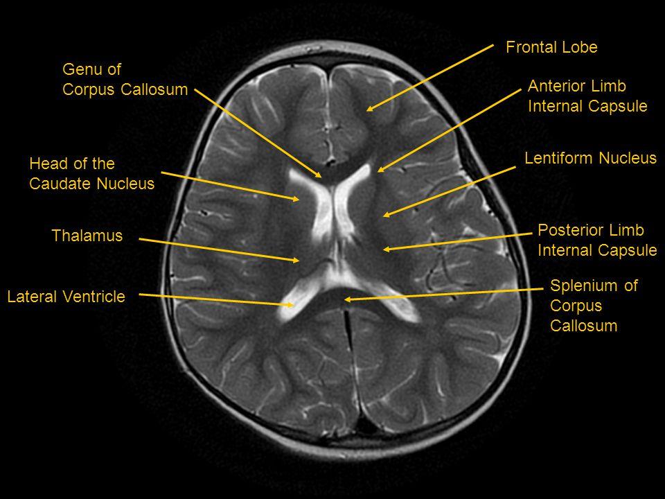 Frontal Lobe Anterior Limb Internal Capsule Lentiform Nucleus Posterior Limb Internal Capsule Splenium of Corpus Callosum Genu of Corpus Callosum Head