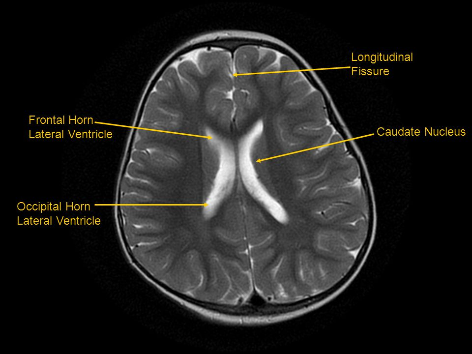 Longitudinal Fissure Caudate Nucleus Frontal Horn Lateral Ventricle Occipital Horn Lateral Ventricle