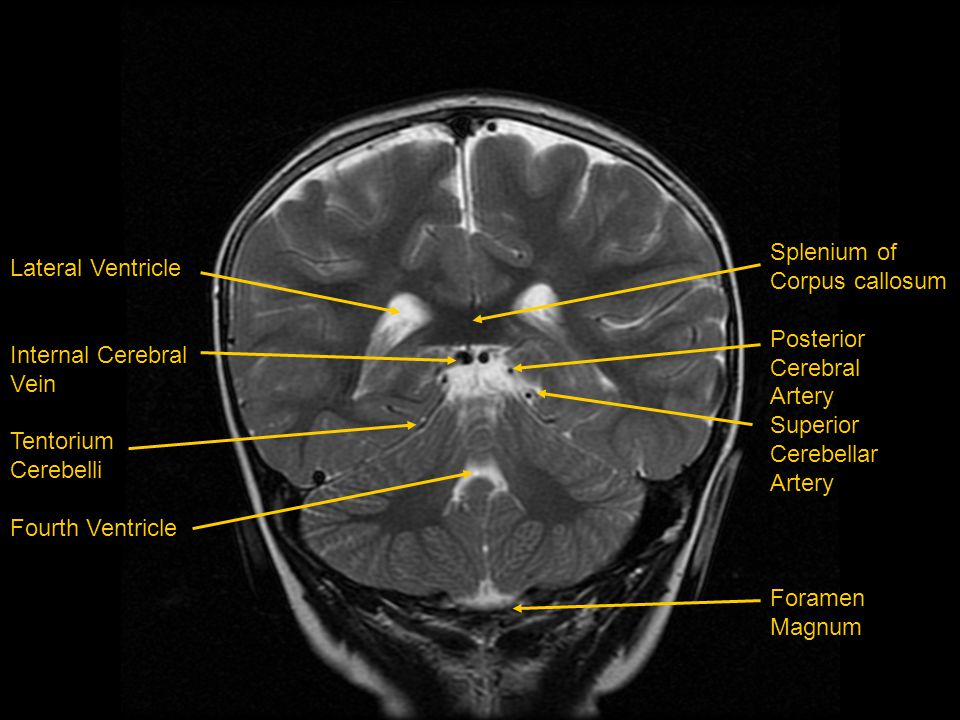 Splenium of Corpus callosum Posterior Cerebral Artery Superior Cerebellar Artery Foramen Magnum Lateral Ventricle Internal Cerebral Vein Tentorium Cer