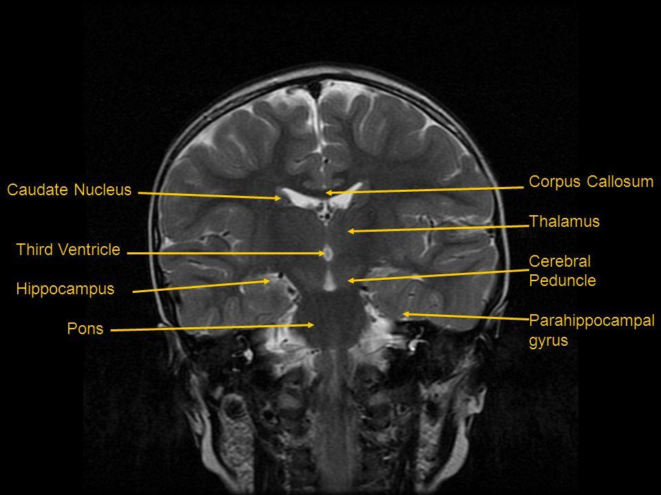 Caudate Nucleus Third Ventricle Hippocampus Pons Corpus Callosum Thalamus Cerebral Peduncle Parahippocampal gyrus