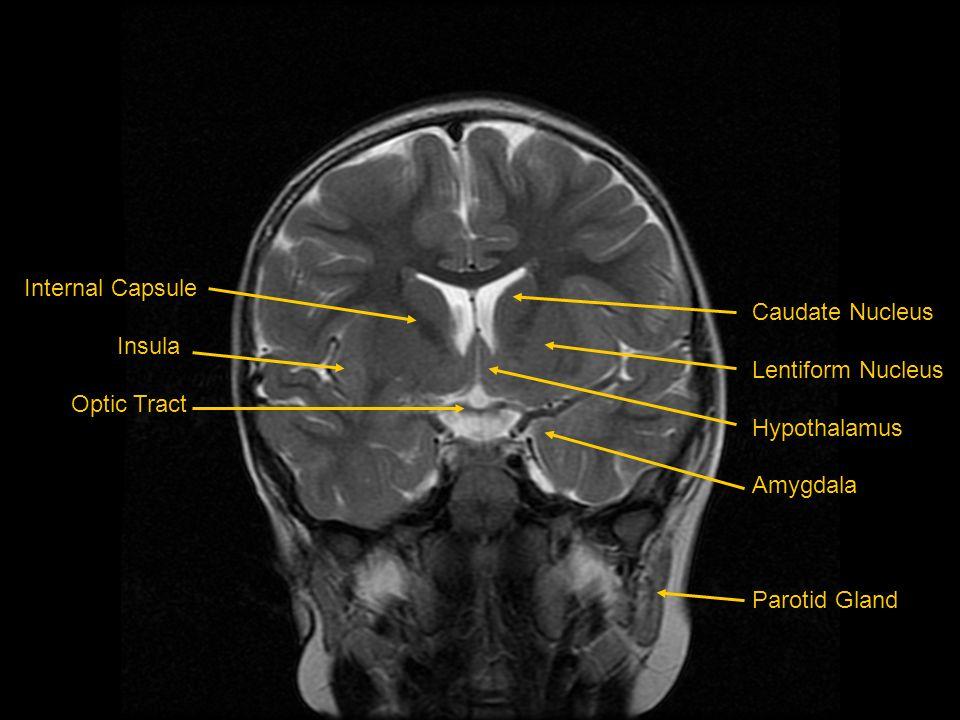 Internal Capsule Insula Optic Tract Caudate Nucleus Lentiform Nucleus Hypothalamus Amygdala Parotid Gland