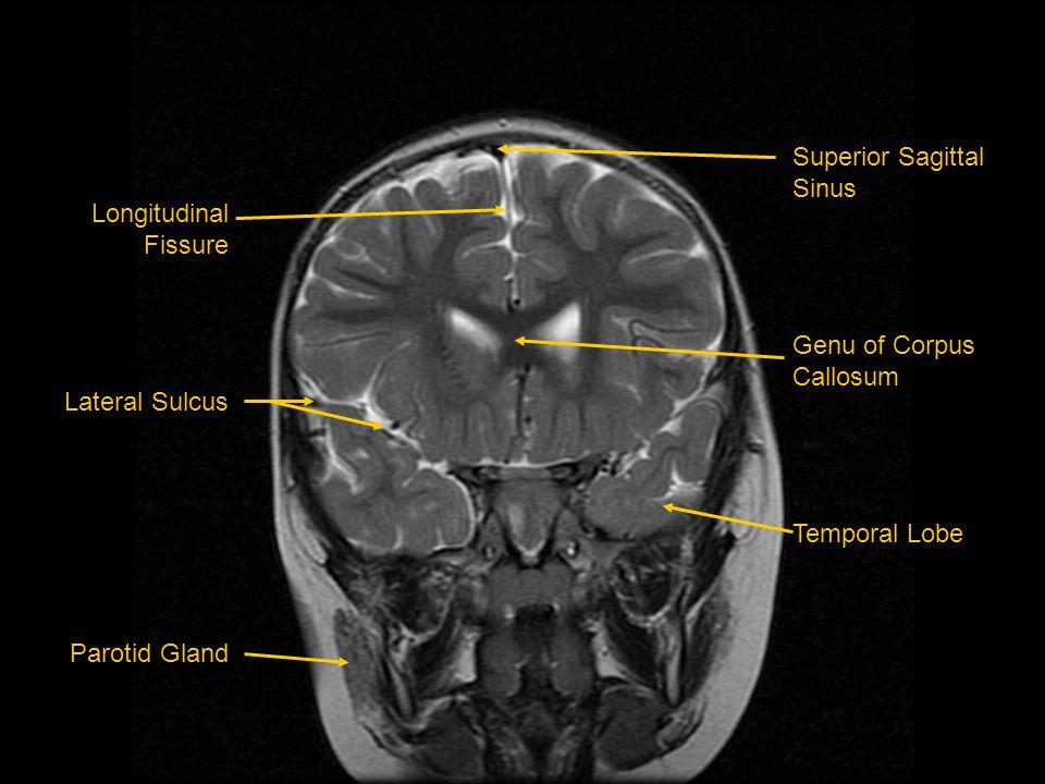 Longitudinal Fissure Lateral Sulcus Parotid Gland Superior Sagittal Sinus Genu of Corpus Callosum Temporal Lobe