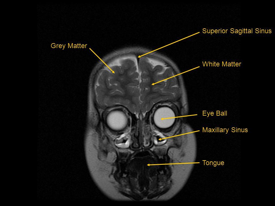 Grey Matter Superior Sagittal Sinus White Matter Eye Ball Maxillary Sinus Tongue