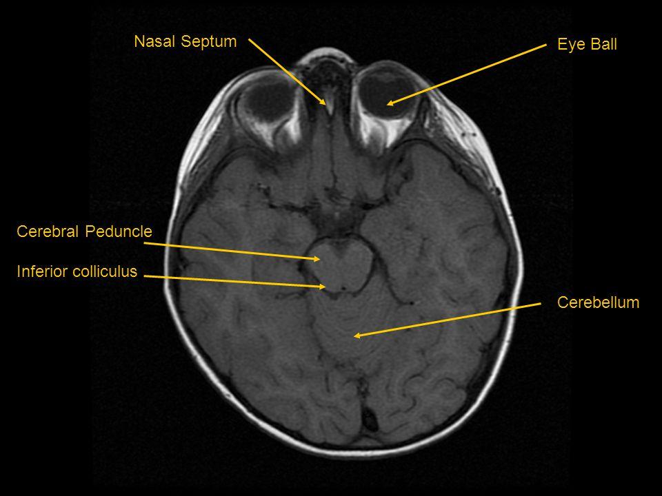 Nasal Septum Cerebral Peduncle Inferior colliculus Eye Ball Cerebellum