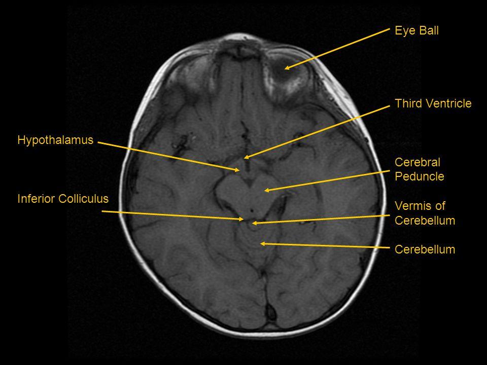 Eye Ball Third Ventricle Cerebral Peduncle Vermis of Cerebellum Hypothalamus Inferior Colliculus
