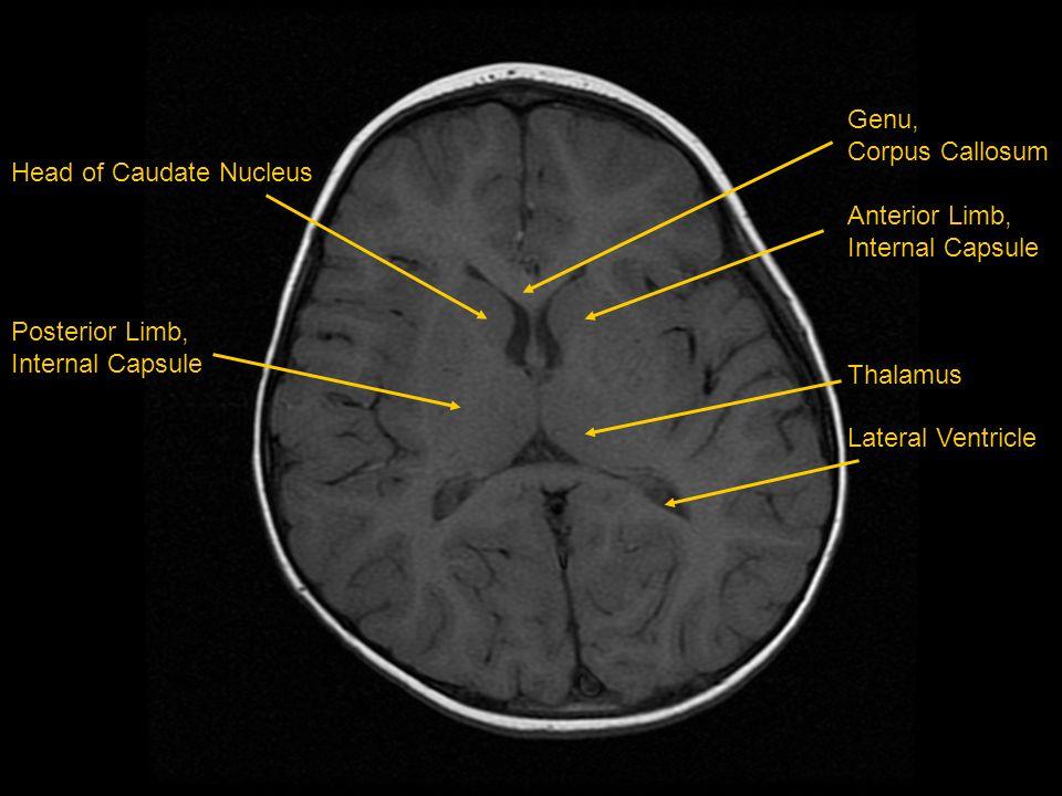 Head of Caudate Nucleus Posterior Limb, Internal Capsule Genu, Corpus Callosum Anterior Limb, Internal Capsule Thalamus Lateral Ventricle