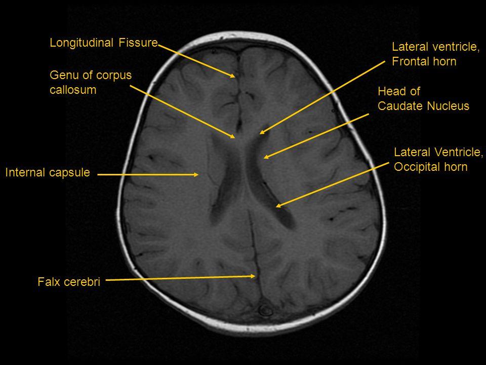 Longitudinal Fissure Genu of corpus callosum Internal capsule Falx cerebri Lateral ventricle, Frontal horn Head of Caudate Nucleus Lateral Ventricle,