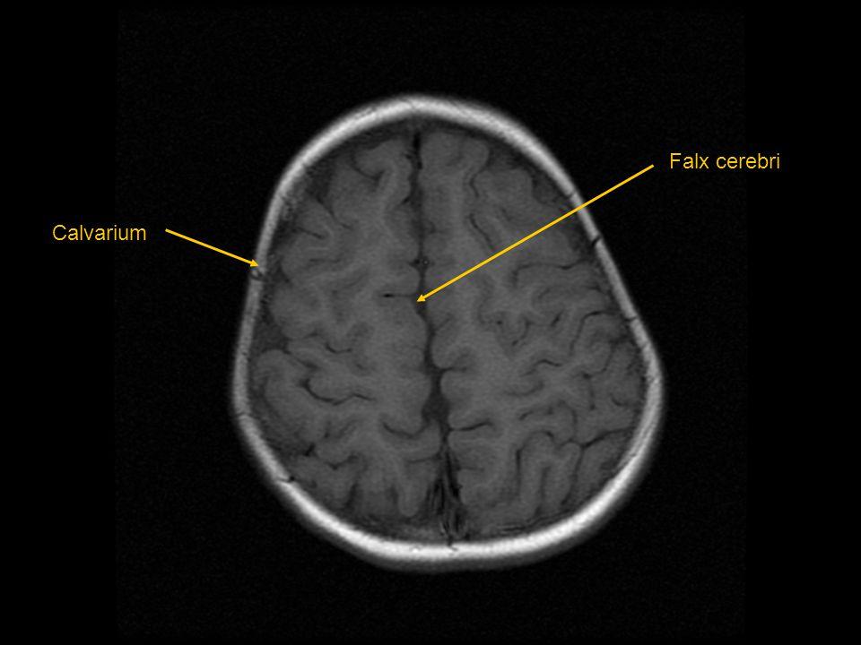 Calvarium Falx cerebri