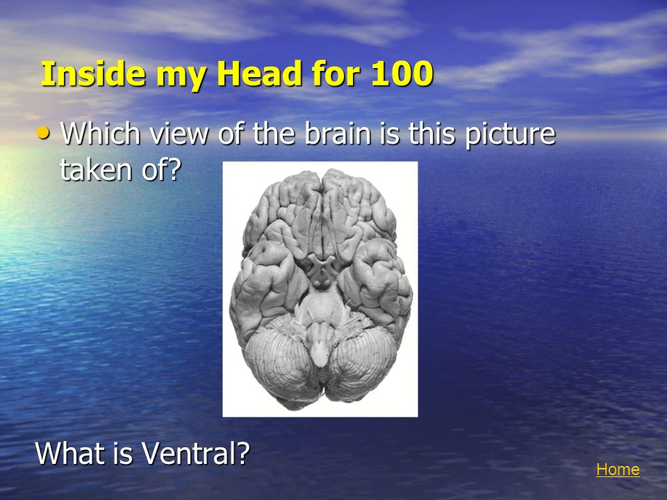 Inside my Head for 100 Which view of the brain is this picture taken of.