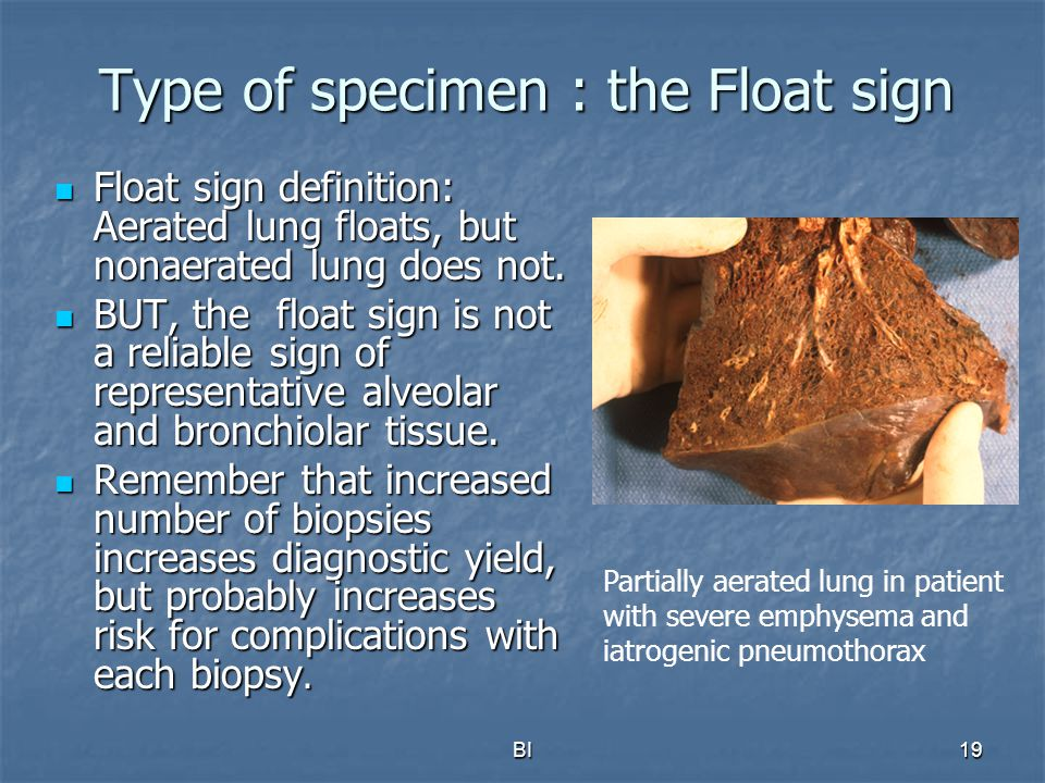 BI19 Type of specimen : the Float sign Float sign definition: Aerated lung floats, but nonaerated lung does not. Float sign definition: Aerated lung f