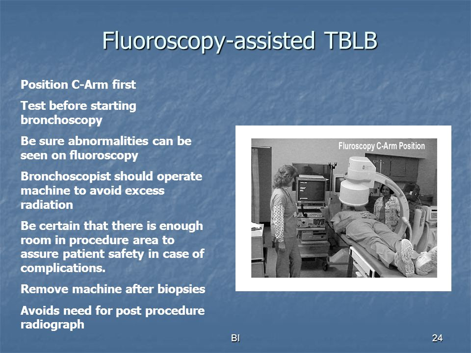 BI24 Fluoroscopy-assisted TBLB Position C-Arm first Test before starting bronchoscopy Be sure abnormalities can be seen on fluoroscopy Bronchoscopist