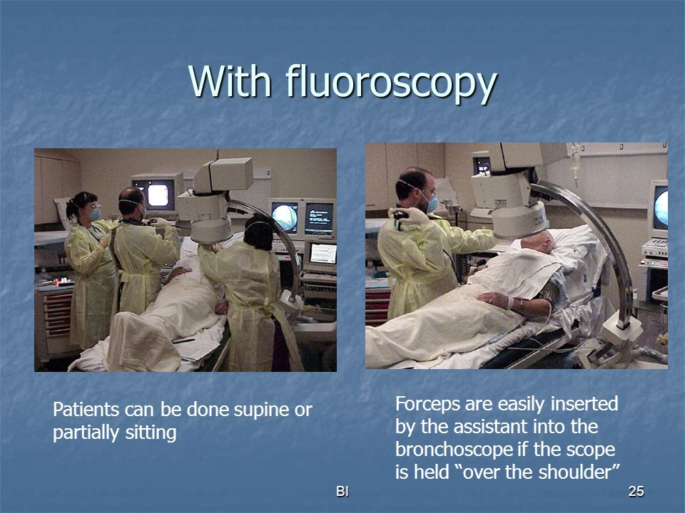 BI26 Fluoroscopy-assisted TBLB Once the scope is wedged, the Bronchoscopist watches the forceps using fluoroscopy only, and does not need to look through the bronchoscope until after all specimens are obtained In case of bleeding, the scope is kept wedged, suction is applied, and the patient is turned into the lateral safety position, bleeding side down.