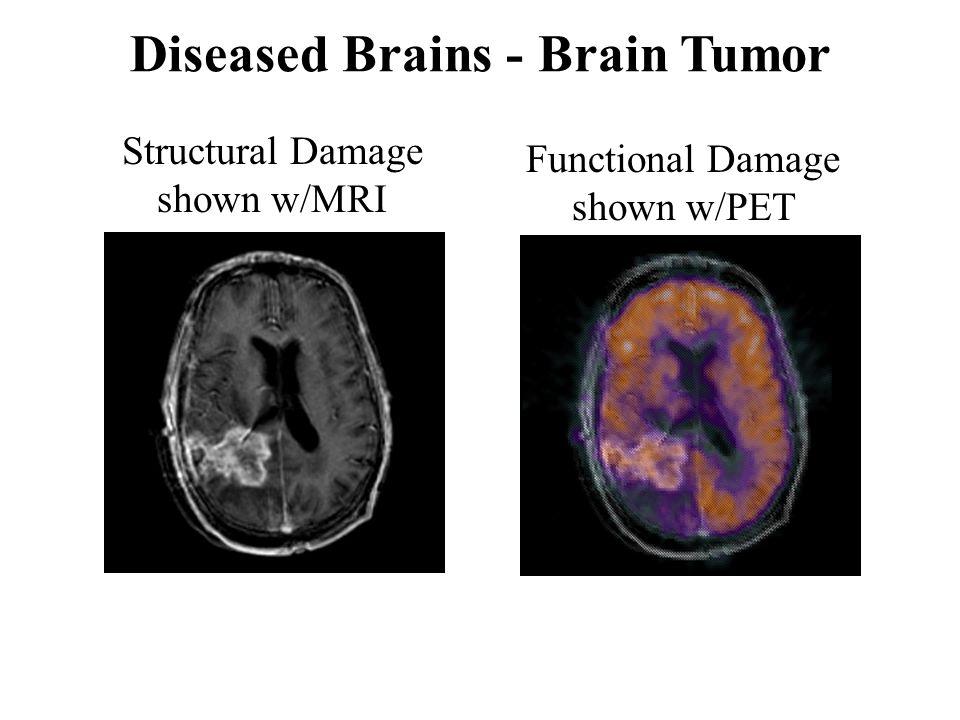 Structural Damage shown w/MRI Functional Damage shown w/PET Diseased Brains - Brain Tumor