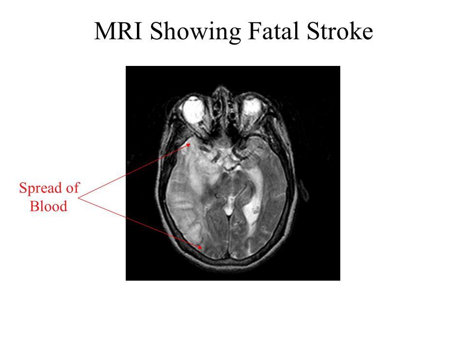 MRI Showing Fatal Stroke Spread of Blood