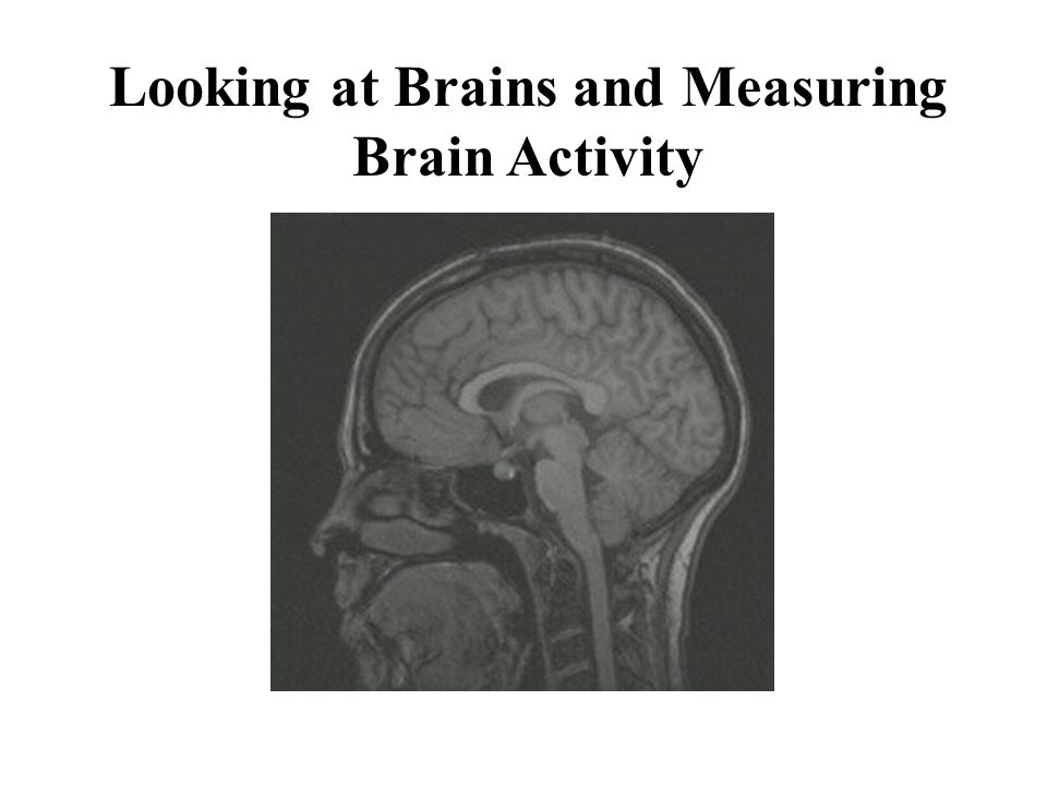 Looking at Brains and Measuring Brain Activity