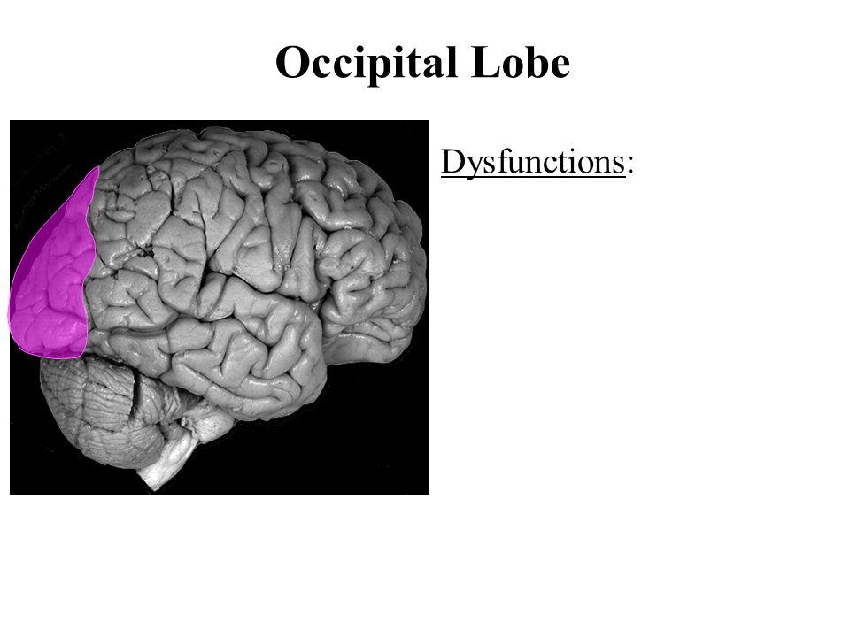 Occipital Lobe Dysfunctions: