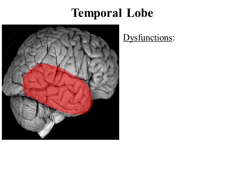 Temporal Lobe Dysfunctions: