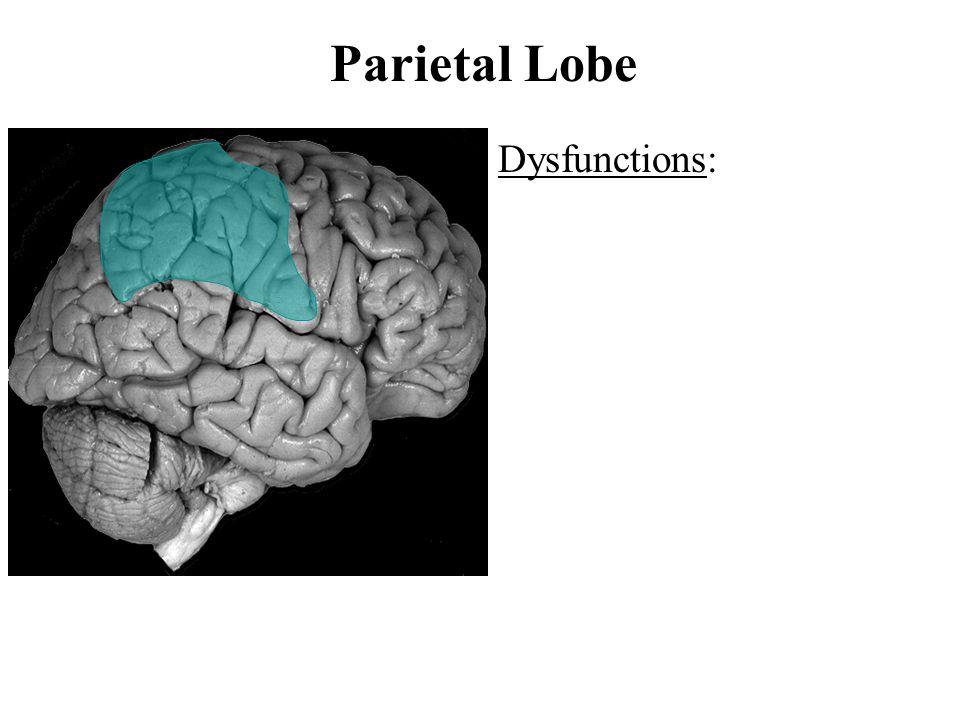 Parietal Lobe Dysfunctions: