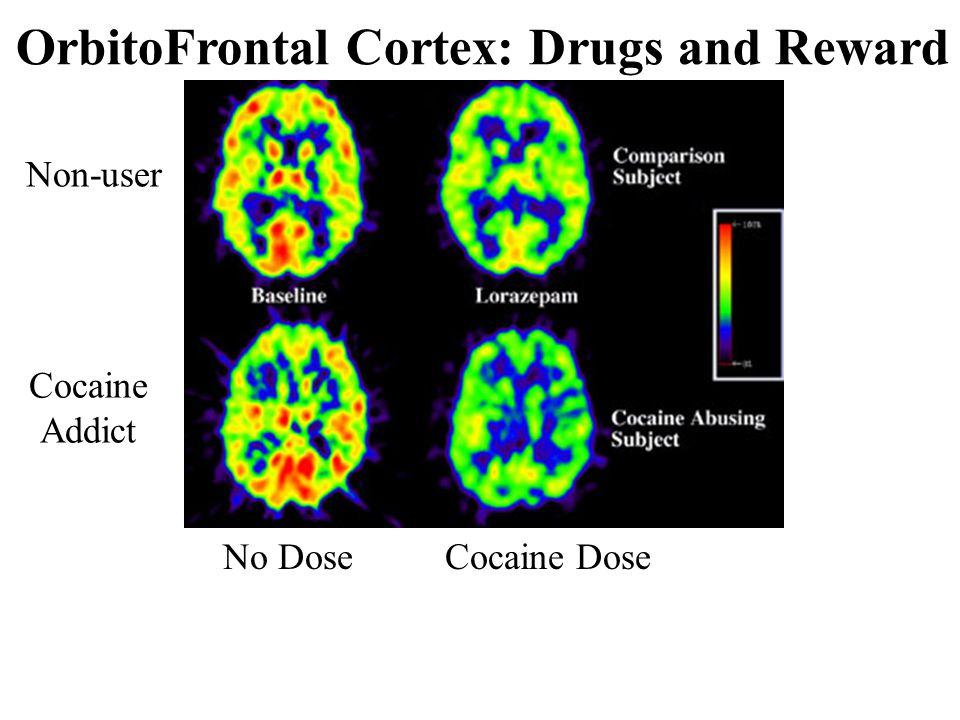 OrbitoFrontal Cortex: Drugs and Reward Non-user Cocaine Addict No DoseCocaine Dose