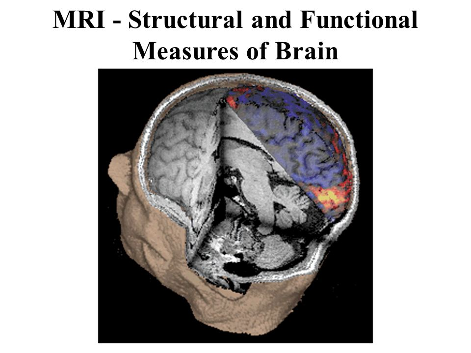 MRI - Structural and Functional Measures of Brain