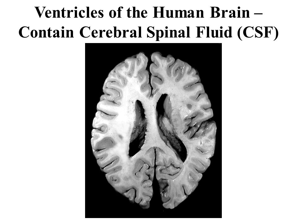 Ventricles of the Human Brain – Contain Cerebral Spinal Fluid (CSF)