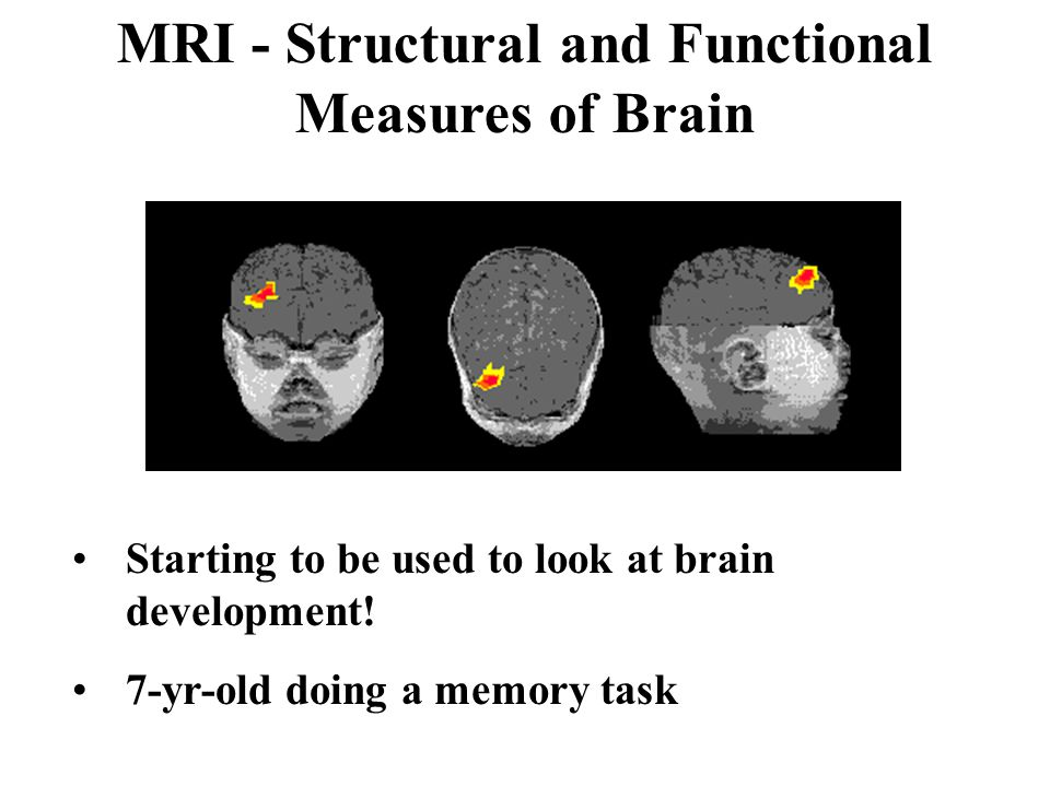 MRI - Structural and Functional Measures of Brain Starting to be used to look at brain development.