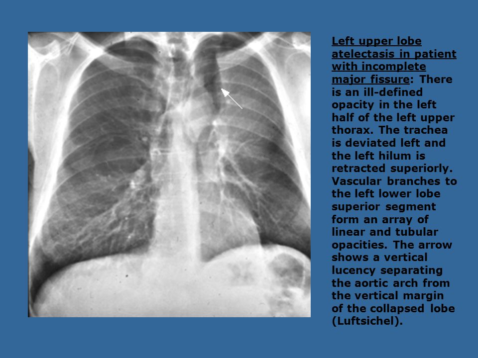 Left upper lobe atelectasis in patient with incomplete major fissure: There is an ill-defined opacity in the left half of the left upper thorax. The t