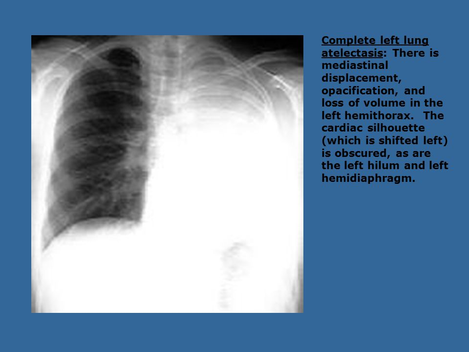 Complete left lung atelectasis: There is mediastinal displacement, opacification, and loss of volume in the left hemithorax. The cardiac silhouette (w