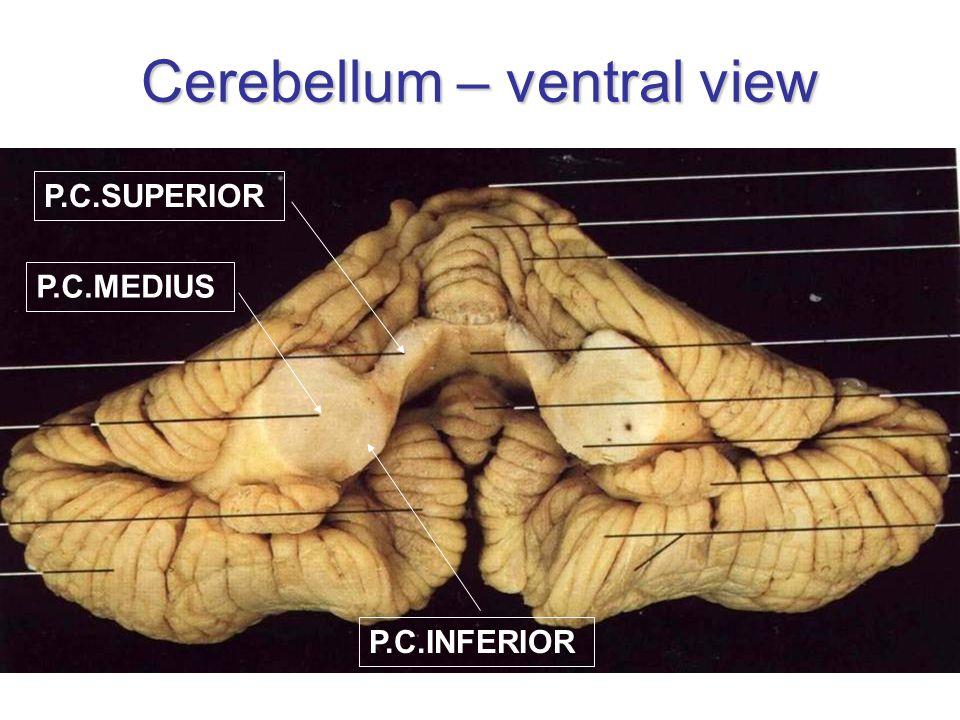 Cerebellum – ventral view P.C.MEDIUS P.C.SUPERIOR P.C.INFERIOR