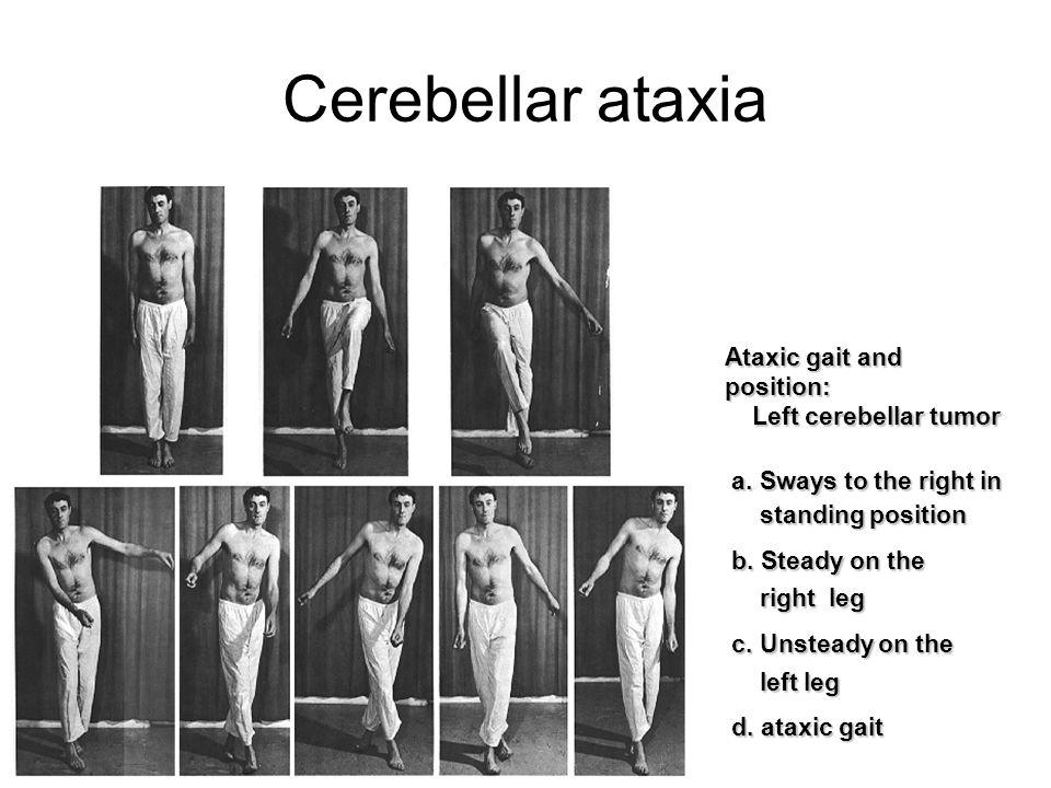 Cerebellar ataxia Ataxic gait and position: Left cerebellar tumor Left cerebellar tumor a. Sways to the right in a. Sways to the right in standing pos