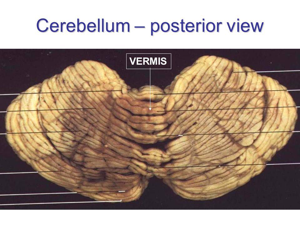 Cerebellum – posterior view VERMIS