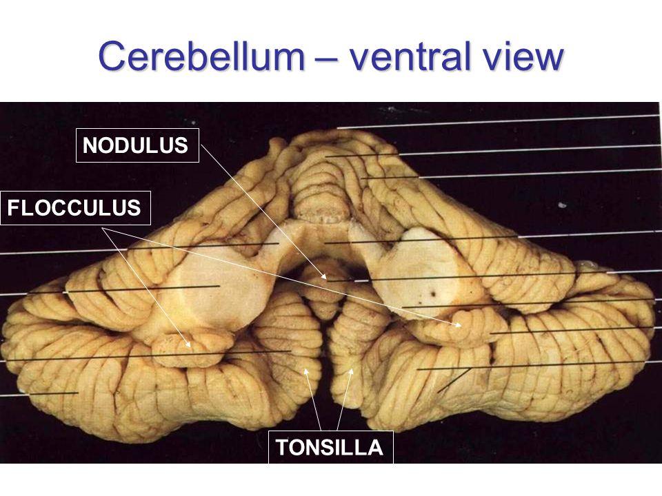 Cerebellum – ventral view TONSILLA FLOCCULUS NODULUS