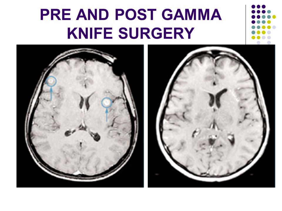 PRE AND POST GAMMA KNIFE SURGERY