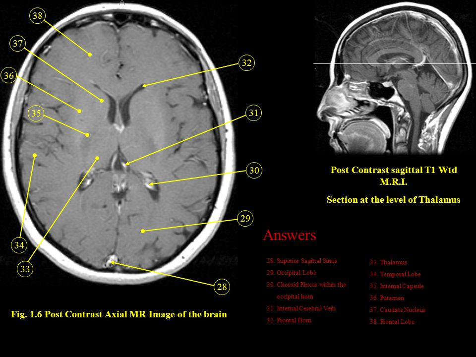 Fig. 1.6 Post Contrast Axial MR Image of the brain 28 29 30 31 32 38 33 34 36 35 37 Post Contrast sagittal T1 Wtd M.R.I. Section at the level of Thala