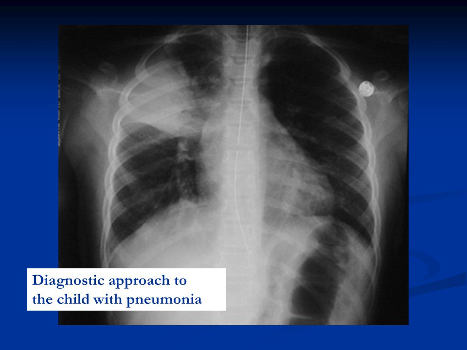 Diagnostic approach to the child with pneumonia