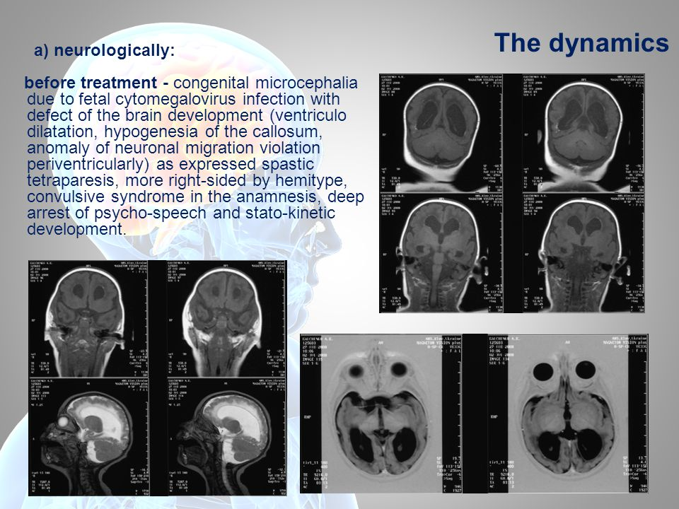 The dynamics а) neurologically: before treatment - congenital microcephalia due to fetal cytomegalovirus infection with defect of the brain development (ventriculo dilatation, hypogenesia of the callosum, anomaly of neuronal migration violation periventricularly) as expressed spastic tetraparesis, more right-sided by hemitype, convulsive syndrome in the anamnesis, deep arrest of psycho-speech and stato-kinetic development.