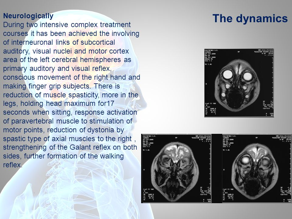 Neurologically During two intensive complex treatment courses it has been achieved the involving of interneuronal links of subcortical auditory, visual nuclei and motor cortex area of the left cerebral hemispheres as primary auditory and visual reflex, conscious movement of the right hand and making finger grip subjects.
